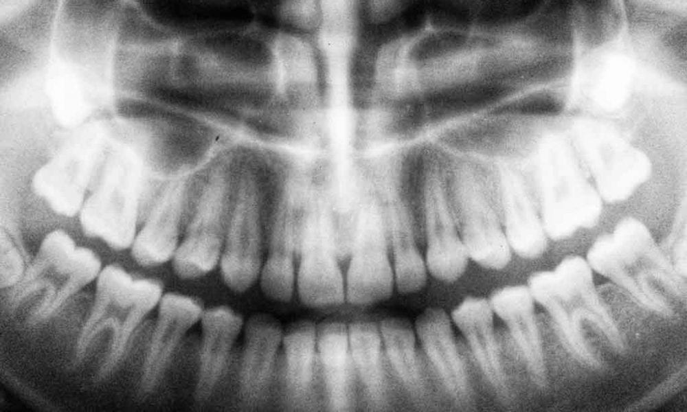 Digital Dental X-Rays In Costa Rica