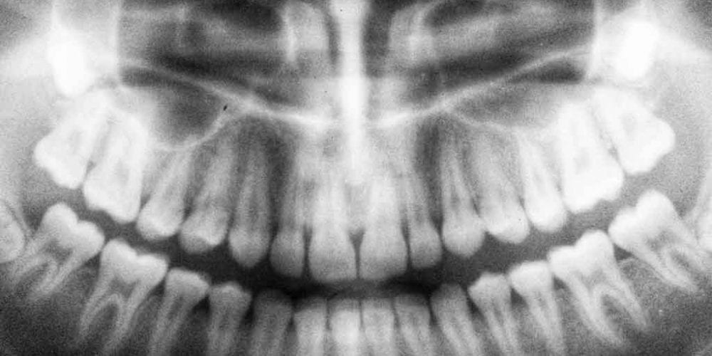 Digital Dental X-Rays Make it Easy to Get Your Dental Process Started