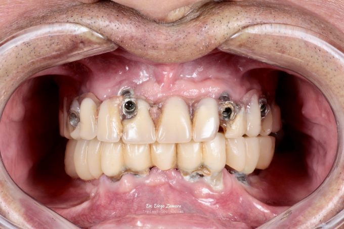 Full Mouth Reconstruction Before