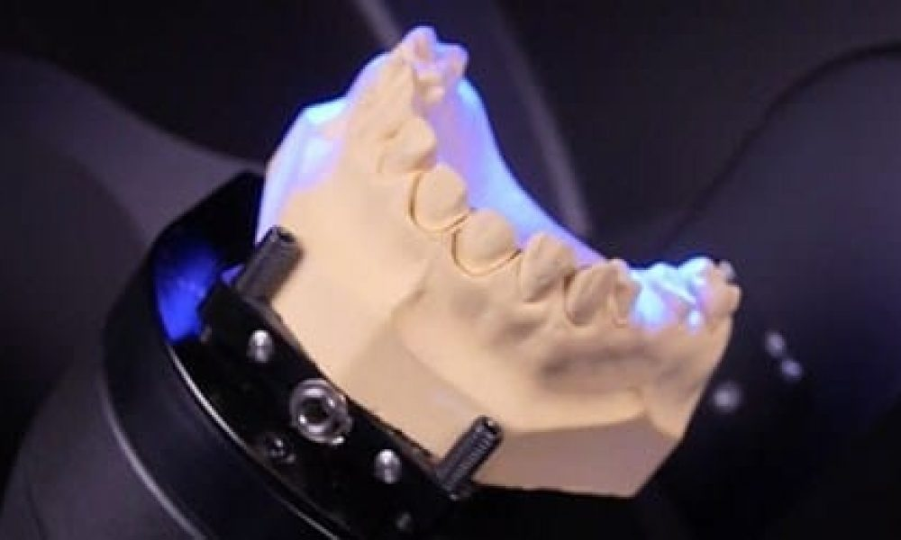 Get the Best Fit With Digital Dental Technology