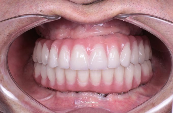 Full Mouth Reconstruction After